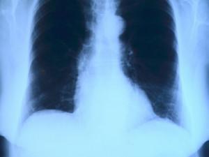 Vyléčeným z covidu-19 je podle lékařů potřeba dál sledovat plíce